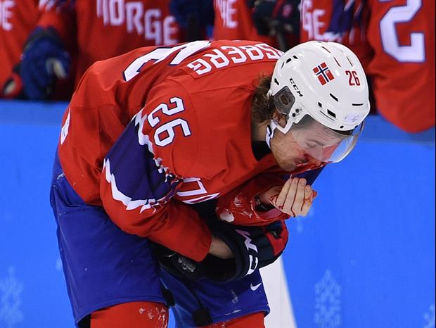 Norway Hockey Player Kristian Forsberg Gets Skate To The Face During Olympic Game against Sweden.